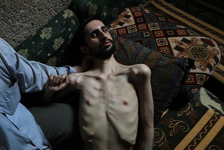 Esed rejimi sakat ve evsiz bıraktı